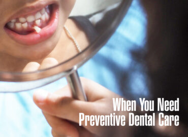 When-You-Need-Preventive-Dental-Care