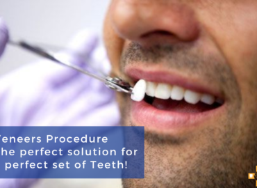 The perfect solution for a perfect set of Teeth!